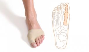 Medžiaginis įtvaras iššokusiam pėdos kauliukui gydyti (2vnt)
